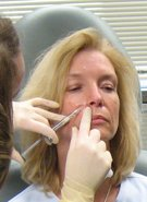 Advanced Dermal Filler Training